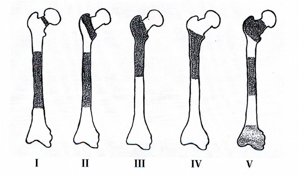 Naše klasifikace ipsilaterálních zlomenin horního konce a diafýzy femuru