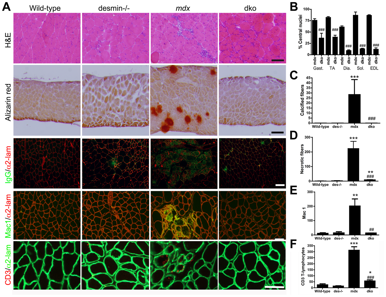 The dystrophic histopathology in <i>mdx<sup>4cv</sup></i> mice was profoundly improved by the absence of desmin.