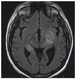 Pacientka 3 – MR nález encefalitidy v oblasti limbického systému a obou kapsul. Fig. 2. Patient 3 – MRI of of encephalitis in the limbic system and both capsules.