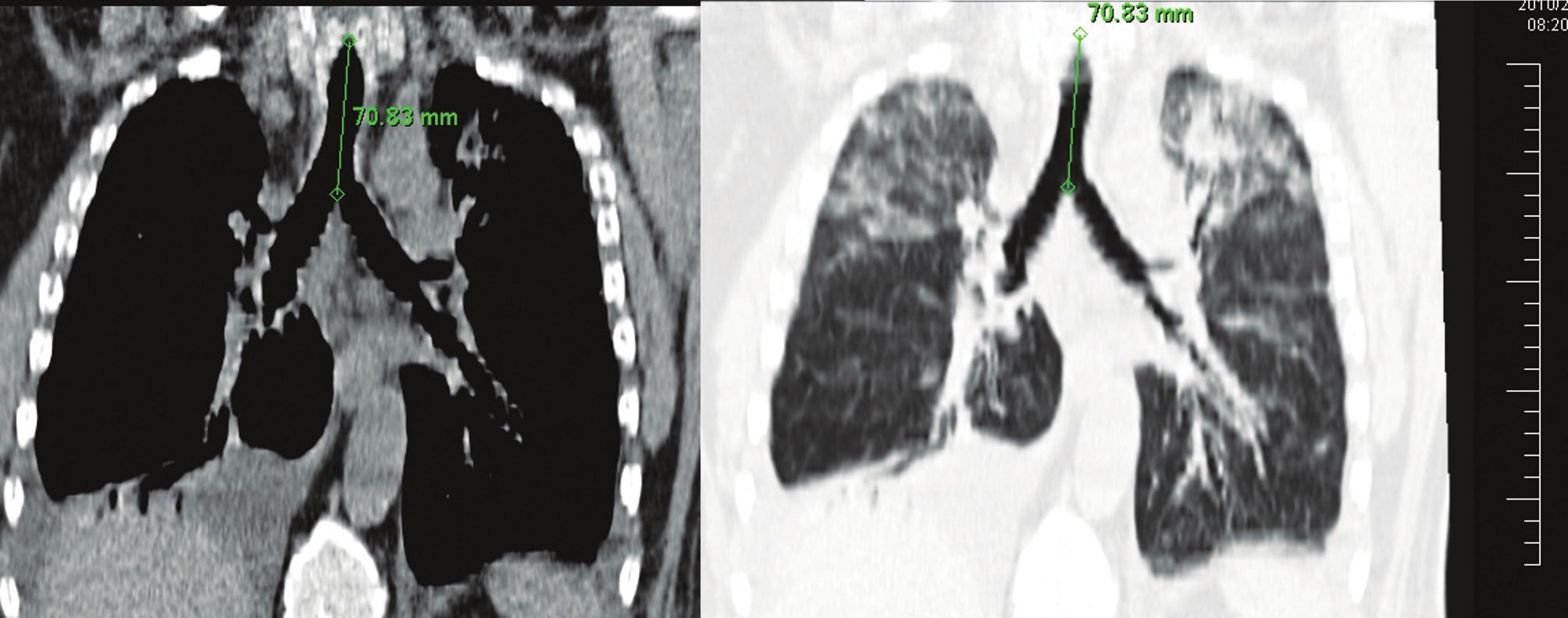 Terajšia dĺžka trachey od hlasivkovej štrbiny po hlavnú bifurkačnú karinu (pacient č. 5) Fig. 7. The postoperative length of the trachea, from the glottis to the main bifurcation carina (patient No 5)