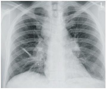 Uzlinami zvětšené oba plicní hily a vpravo paratracheálně v mediastinu