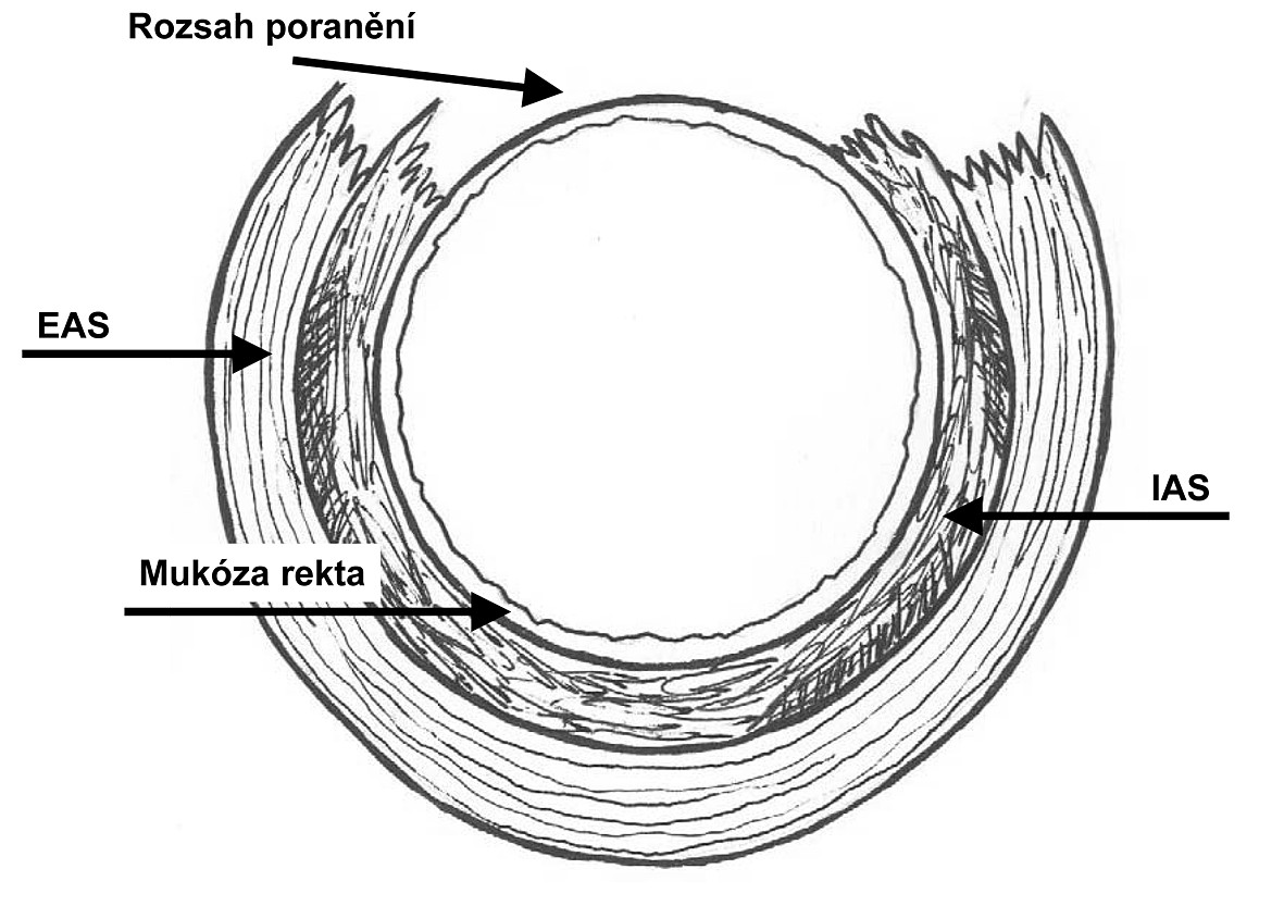 Ruptura perinea stupně 3c podle RCOG