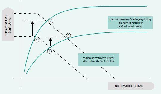 Schéma 2. Integrované znázornění Guytonova (čárkované křivky) a Frankova-Starlingova (plné křivky) modelu. Body 1 a 3 znázorňují počáteční stav, body 2 a 4 (a příslušné šipky) znázorňují změny v hemodynamických parametrech po podání objemu u pacienta preload responzivního (2) a neresponzivního (4)