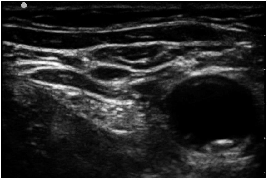 Okrouhlý hypoechogenní obraz příčného řezu femorální tepny vpravo a typicky hyperechogenní trojúhelníkový obraz n. femoralis na příčném řezu vedle tepny  Nad těmito strukturami jsou jasné hyperechogenní linie fascií.