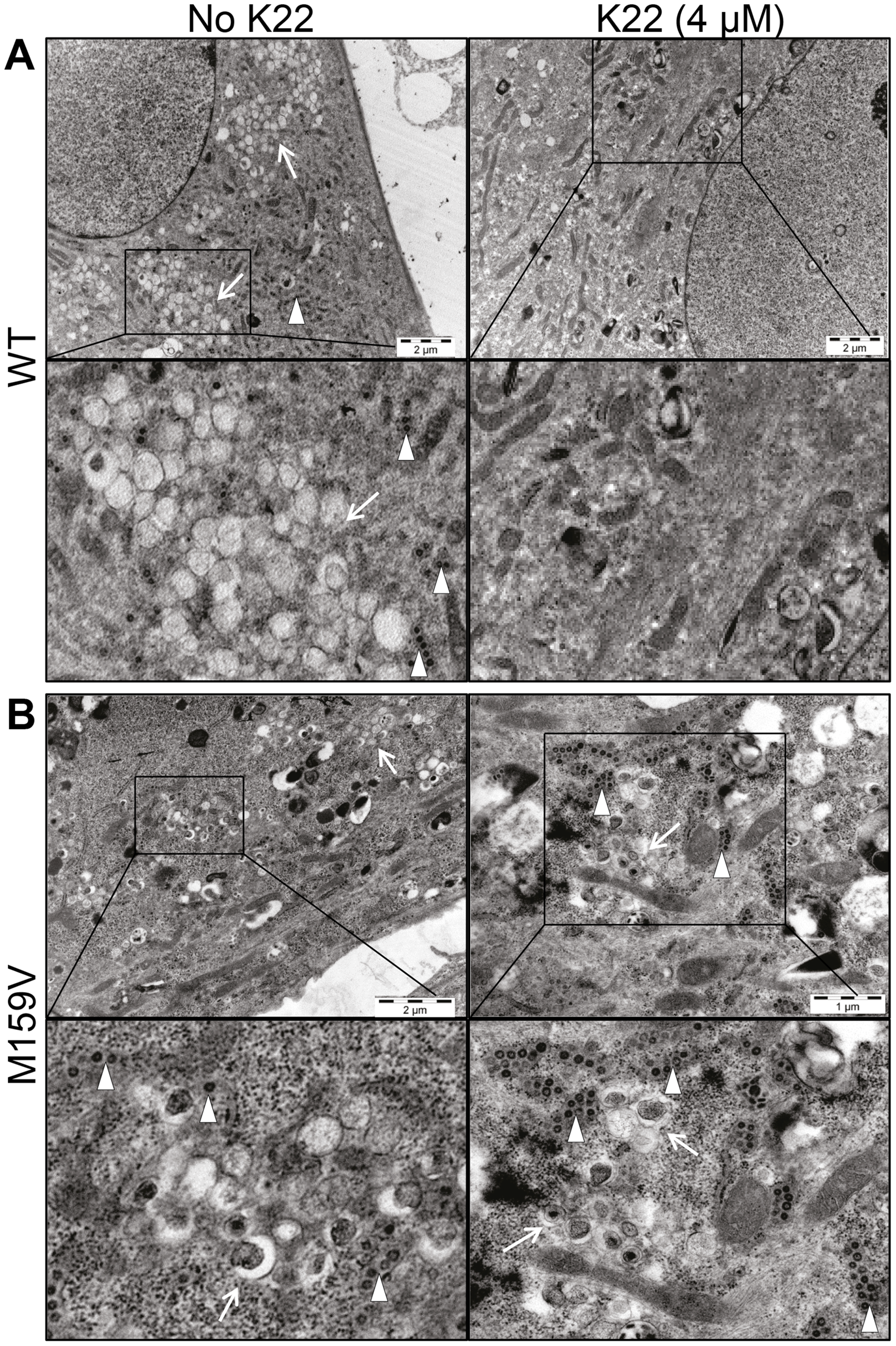 K22 affects formation of double membrane vesicles (DMVs).