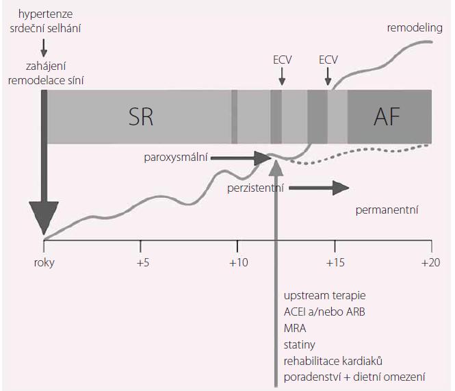 Časový průběh remodelace síňového substrátu, který začíná dlouho před první epizodou fibrilace síní. Upraveno dle [31]. Hypotetické znázornění vlivu základního onemocnění, jako je hypertenze nebo srdeční selhání, na indukci remodelace síní ještě dlouho před nástupem FS a jak postupně progreduje remodelace síní ve vztahu ke klinické FS. Světlá šedá šipka označuje časné podání upstream terapie, která redukuje progresi remodelace nebo navodí pozitivní remodelaci síně (tečkovaná čára), a tím může zlepšit udržení sinusového rytmu. ACEI – inhibitory angiotenzin konvertujícího enzymu, ARB – sartany, blokátory receptorů 1 angiotenzinu II, MRA – antagonisté receptoru mineralokortikoidů, ECV – elektrická kardioverze, AF – fibrilace síní, SR – sinusový rytmus