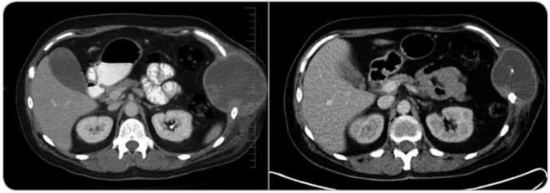 Srovnání CT vyšetření z ledna 2012 (vlevo) a z dubna 2012 po aplikaci tří cyklů neoadjuvantní chemoterapie (vpravo). Je znatelné zmenšení tumoru hrudní stěny po léčbě.