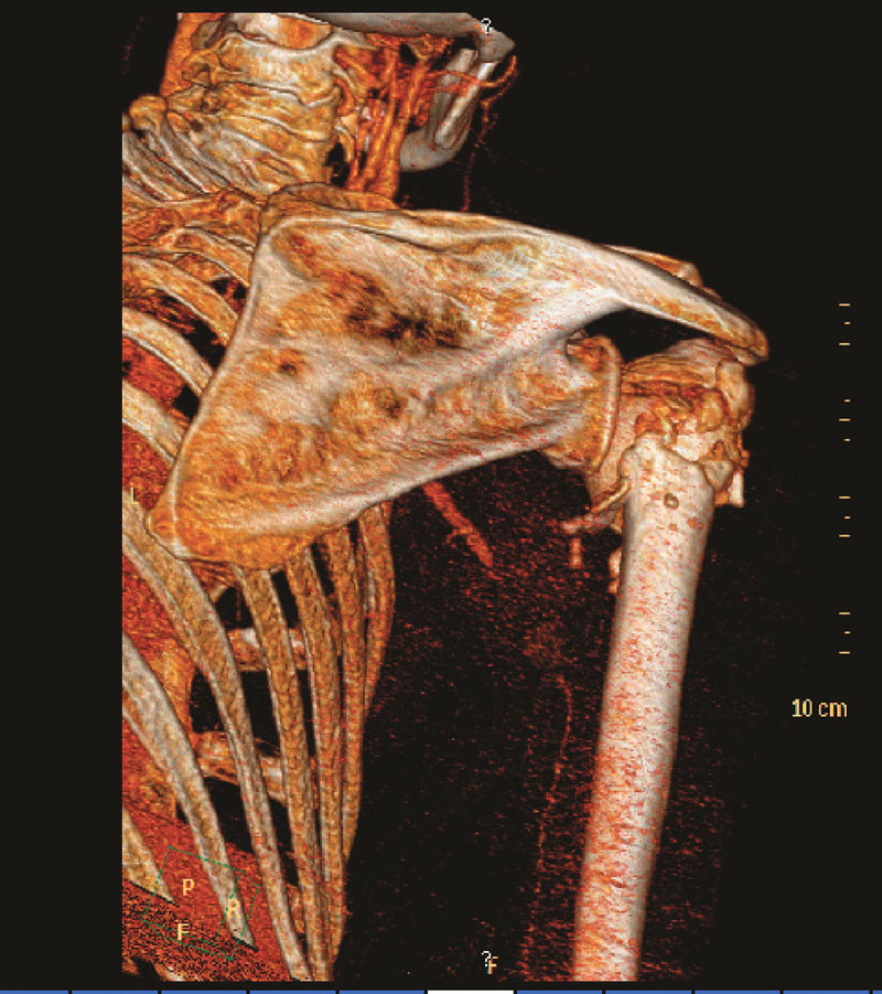 3D CT angiografie s patrnou okluzí 3. segmentu arteria axillaris Fig. 2. 3D CT angiography depicting occlusion of the 3rd segment of the arteria axillaris