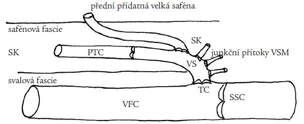 Anatomie přední přídatné velké safény (PPVS). PPVS odstupuje z velké safény v různé vzdálenosti od terminální chlopně (TC), probíhá v safénovém kompartmentu (SK) ohraničeném safénovou a svalovou fascií, v různé vzdálenosti od svého odstupu z VS proráží safénovou fascii do povrchnějších částí podkoží.