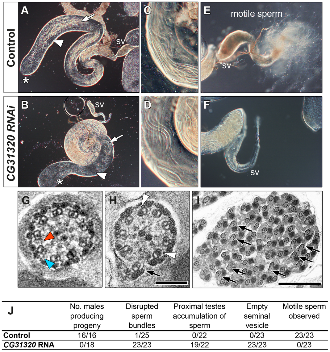 <i>CG31320</i> is required for sperm flagellar motility and male fertility.