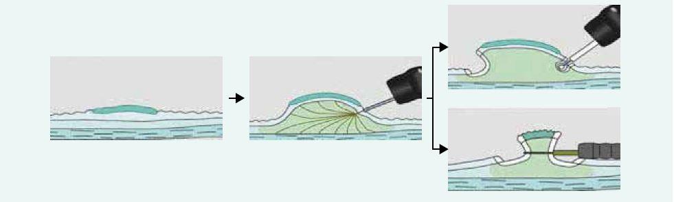 Endoskopické řešení plochých slizničních lézí – EMR a ESD
