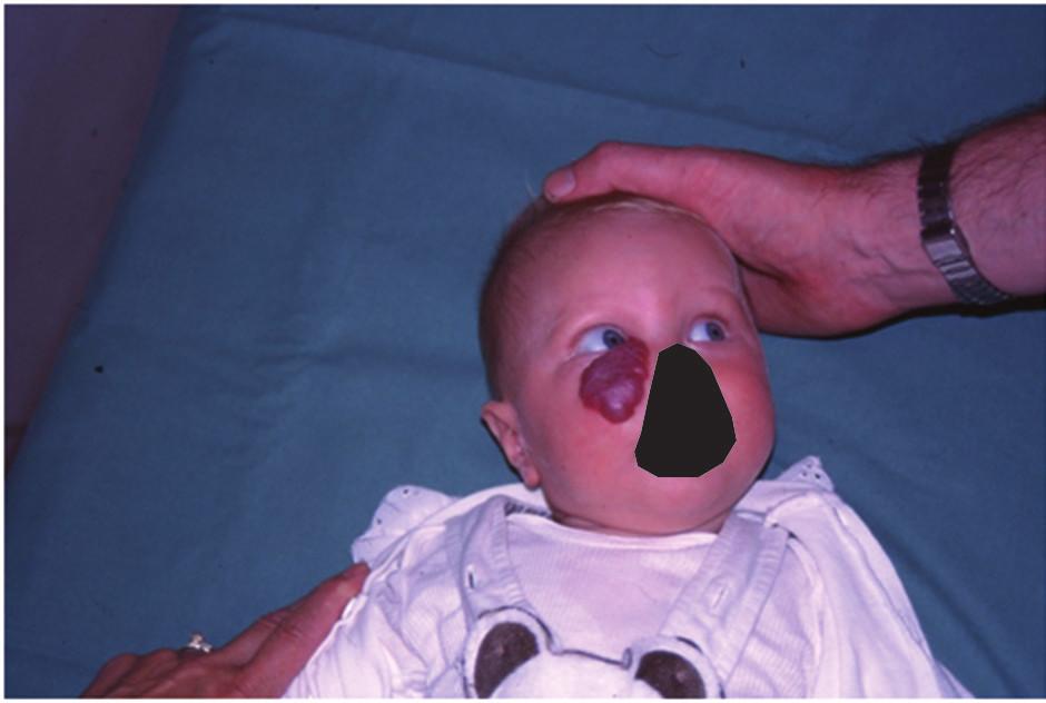 Kapilární hemangiom dolního víčka u šestiměsíčního kojence