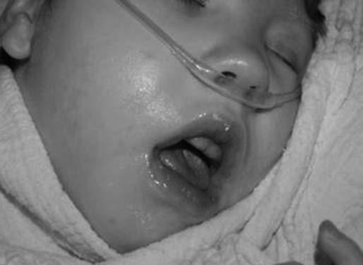 Oxygenoterapie infaustně nemocného dítěte.