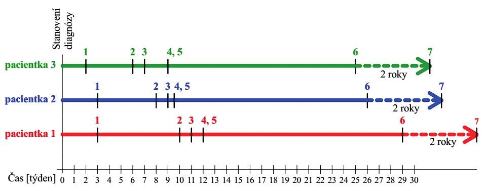 Schematické znázornění časového sledu a trvání terapeutických modalit