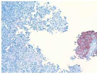 Imunohistochemický dôkaz cytokeratínu typ 7 v epitelovej zložke v pravej časti, osteosarkómový komponent vľavo je negatívny Fig. 4. Immunohistochemical detection of cytokeratin type 7 in epithelial component on the right part of the picture, osteosarcomatous component in the left is negative