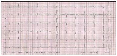 Elektrokardiografický záznam pacientky z 28. 2. 2003.