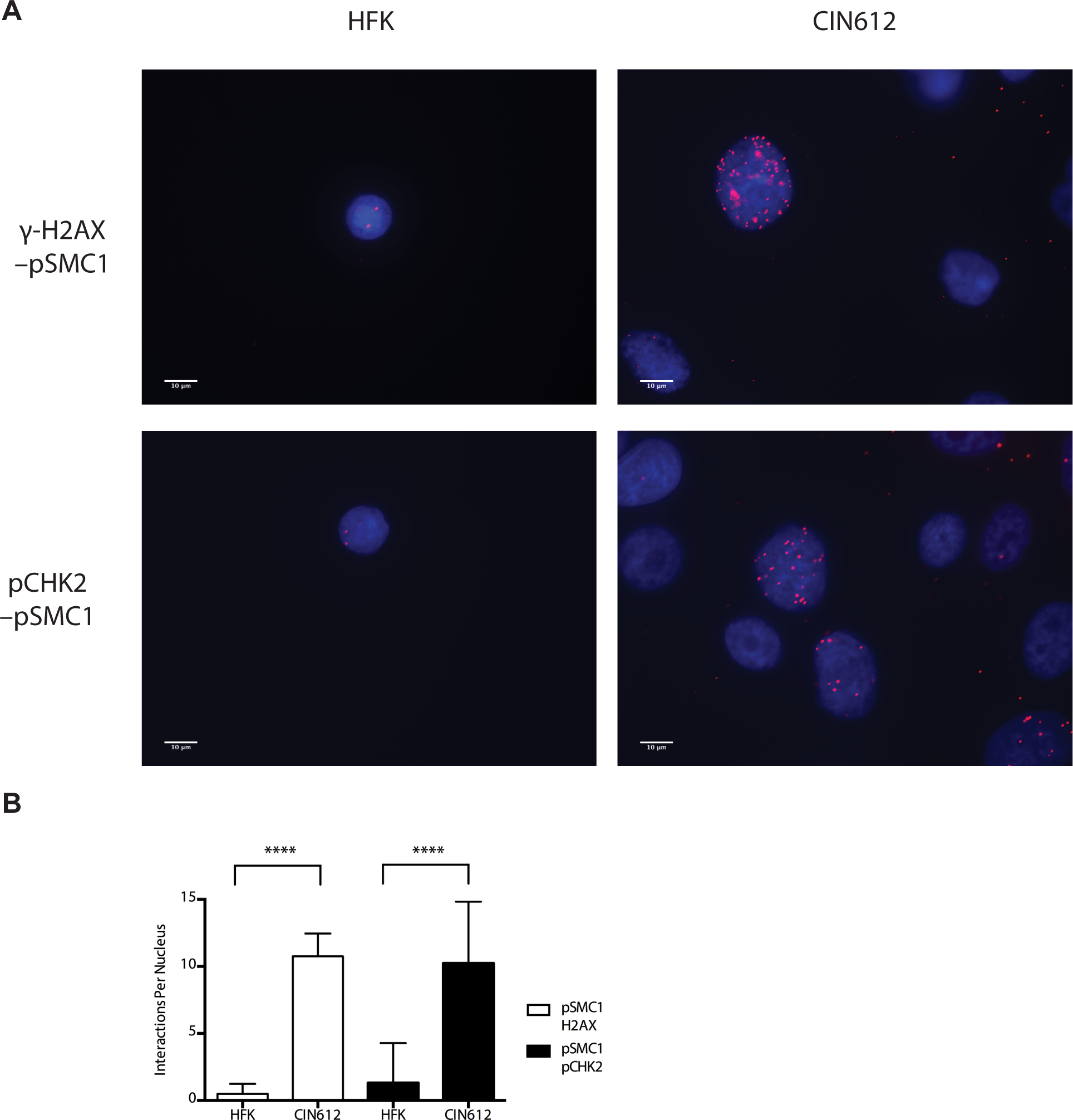 On-slide co-immunoprecipitations for pSMC1 in HFKs and HPV positive cells shows a direct interaction between pSMC1 and γ-H2AX as well as pSMC1 and pCHK2 in HPV positive cells but not HFKs.