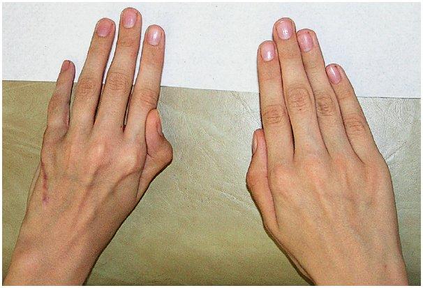 Stav za 6 měsíců po korekci abdukčního a semiflekčního postavení malíku na levé ruce u chlapce z obrázku č. 6 transferem šlachy m. extenzor digiti minimi na mediální stranu malíku.
