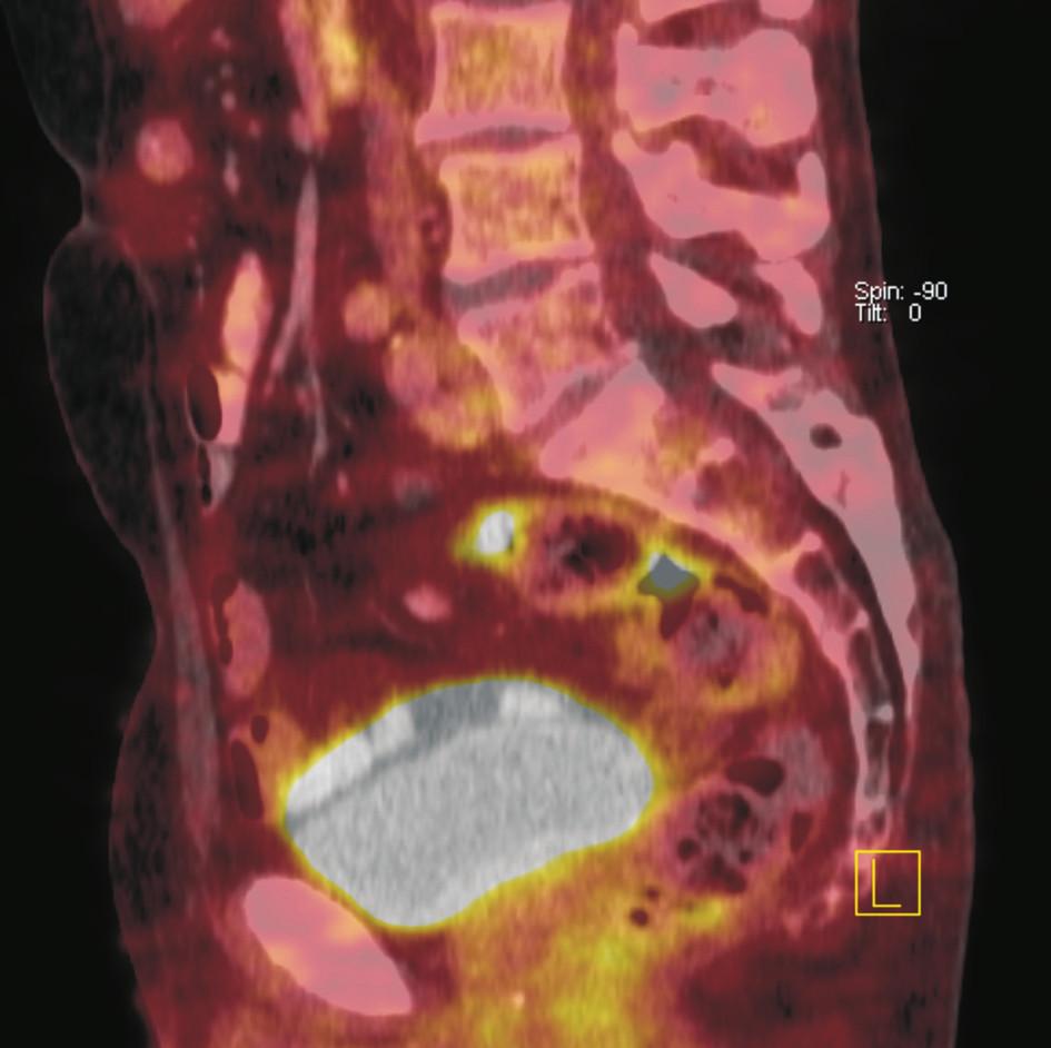Fúze sagitálních řezů PET a CT. Je patrná fokálně zvýšená akumulace <sup>18</sup>F-FDG ve dvou krátkých úsecích rektosigmoidea. CT bez jednoznačného strukturálního korelátu. Doporučeno endoskopické došetření, které prokázalo polyp tlustého střeva. Histologicky potvrzen tubulovilózní adenom.