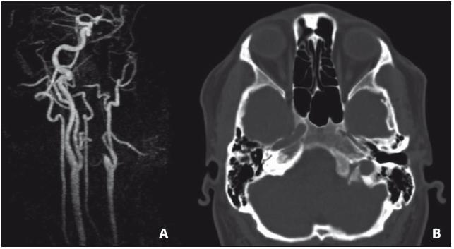 CT obraz levostranného hypoplastického karotického kanálu (B) a pahýl levé ACI na MR angiografii (A).