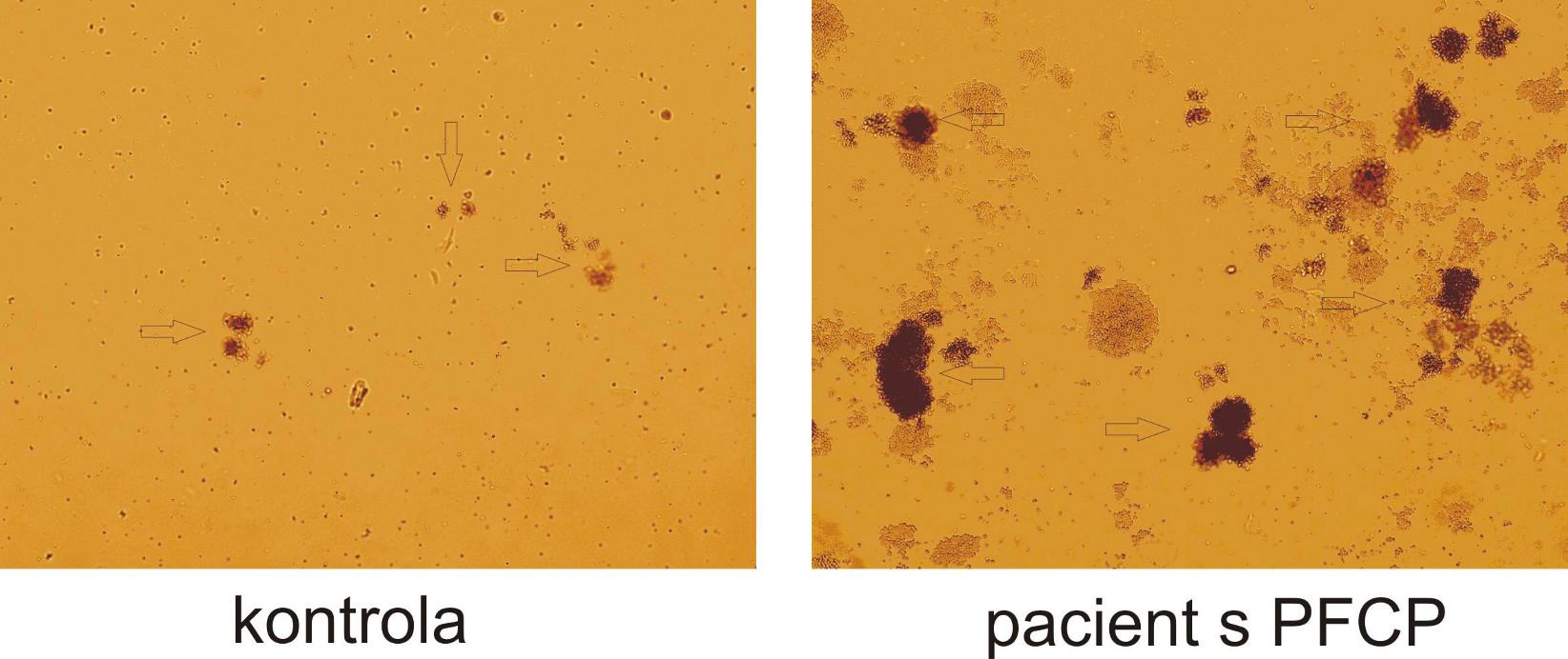 Hypersenzitivita erytroidních progenitorů na EPO in vitro. Výrazný rozdíl růstu erytroidních kolonií (BFU-E) u pacienta s PFCP ve srovnání se zdravou kontrolou při stejné koncentraci EPO (0,12 U/ml). Po 14 dnech kultivace je zřetelný rozdíl jak v počtu, tak ve velikosti erytroidních kolonií  označeny šipkami).