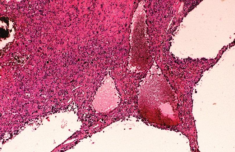 Přehledný snímek teleangiektatického osteosarkomu. V septech se nacházejí osteoklasty a atypické nádorové buňky s osteoplazií. HE, x40.