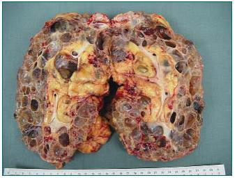 Velká polycystická ledvina (3,8 kg) s mnoha prokrvácenými cystami. Odstraněna z důvodu nedostatku místa pro transplantát před zařazením pacienta do WL.