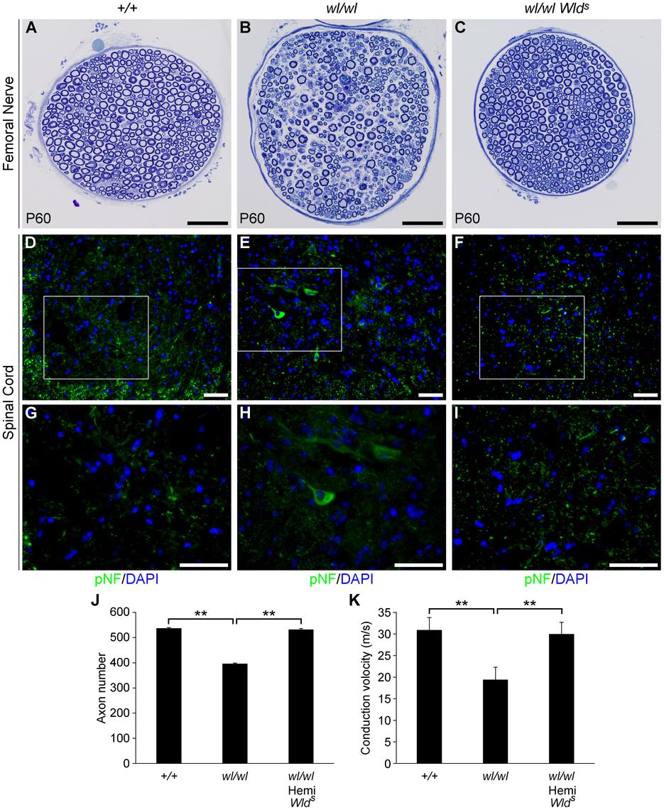 The <i>Wld<sup>s</sup></i> mutation delays axonal degeneration in <i>wl</i> (<i>wl/wl</i>) mice.