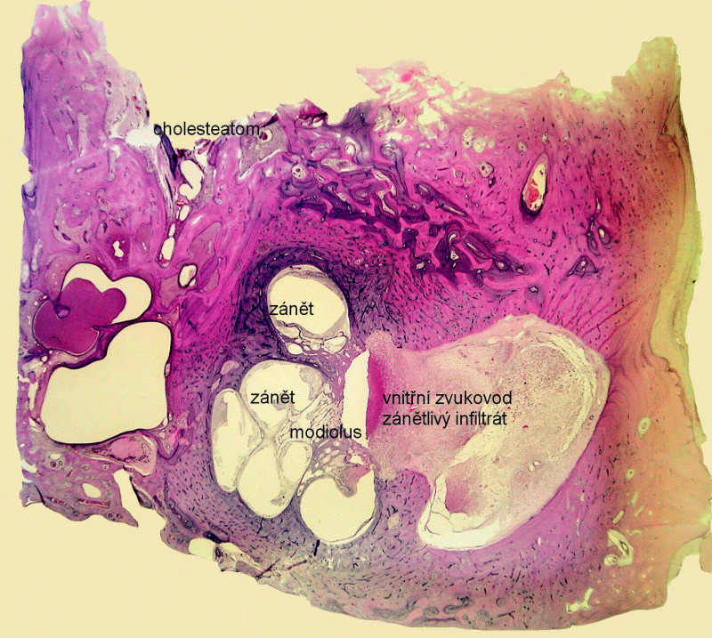 Akutní hnisavá labyrintitida – zánětlivý infiltrát v oblasti hlemýždě a vnitřního zvukovodu. Kazuistika 2. - histologický obraz, vertikální řez levou spánkovou kostí, barvení hematoxylin eozin.