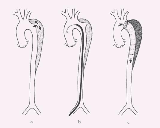 Schéma endovaskulární léčby disekce typu B:  a) disekce B s primárním entry tear za levou podklíčkovou tepnou, b) stentgraft zavedený do oblasti primárního entry tear, c) implantace stentgraftu s překrytím primárního entry tear a navozením trombózy falešného kanálu v oblasti sestupné hrudní aorty.
