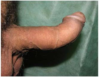 PD – dorzální kurvatura Fig. 5 PD – dorsal curvaturea
