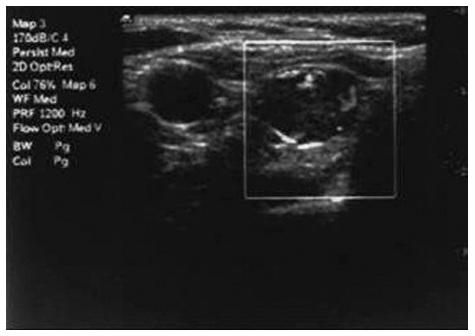 Obr. 1a: Peroperační USG příštítného tělíska Fig. 1a: Intraoperative parathyroid USG