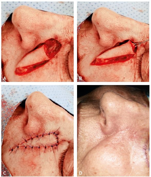 A–D. Sequence of reconstruction of defect on the nasal-cheek border with V-Y advancement nasolabial flap
