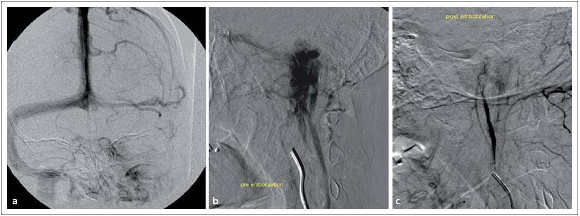 Tumor glomus jugulare vlevo v zobrazení DSA. Obr. 9a) Obliterace sinus sigmoideus vlevo. Obr. 9b) Extrémní hypervaskularizace tumoru glomus jugulare. Obr. 9c) Příznivý stav po embolizaci nádoru.