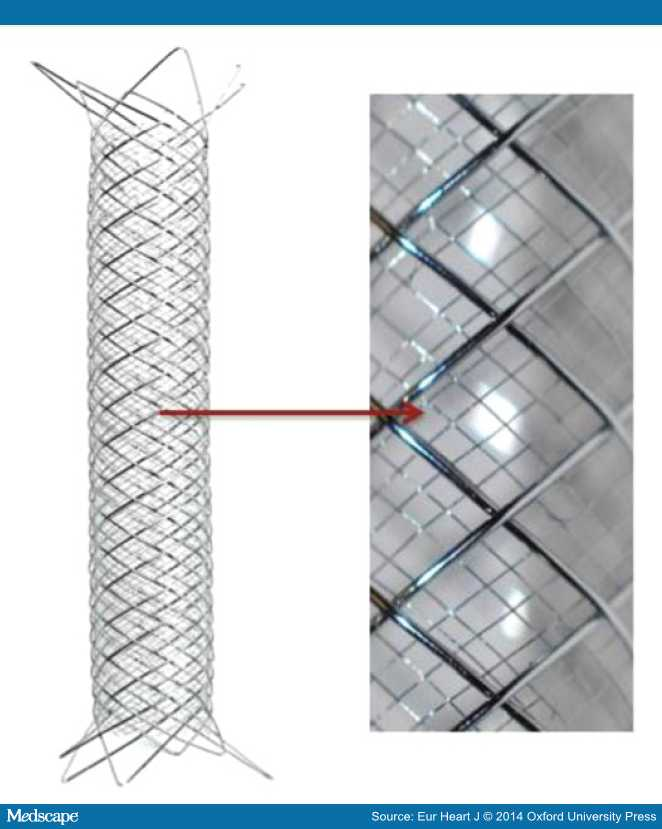 Karotický stent s dvojitým výpletem (Casper, MicroVention)