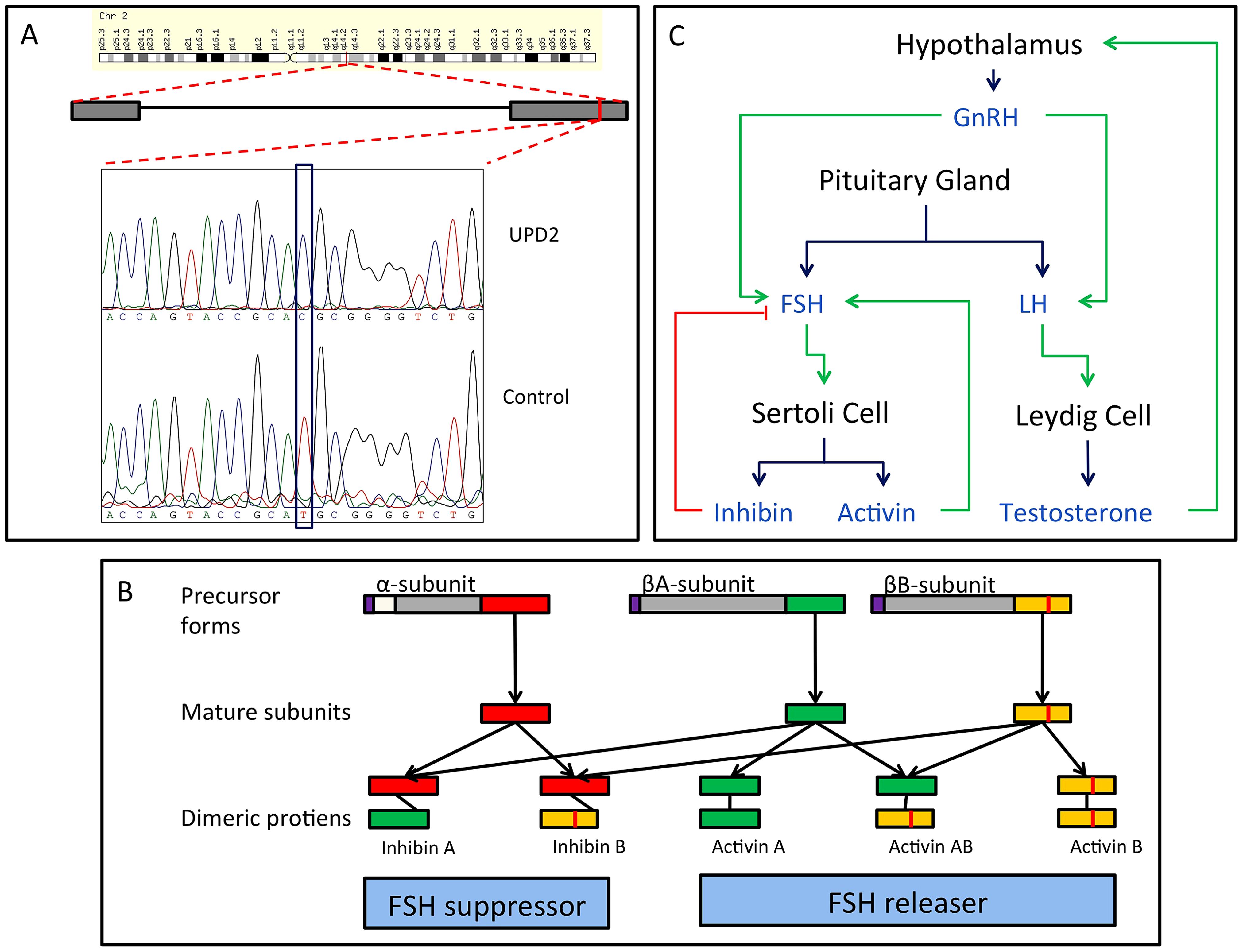 Homozygous missense mutation of <i>INHBB</i> identified in the case of UPD2.
