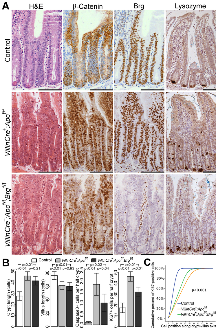 Brg1 loss attenuates the effects of Apc deletion in the small intestinal epithelium.