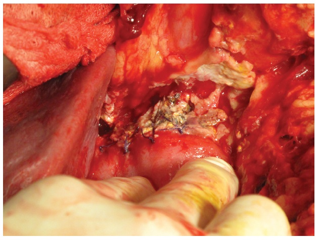 Kazuistika 2 – okrajová nekróza pankreatu v dehiscentní PJA Fig. 5: Case 2 – PJA leakage – marginal pancreas necrosis
