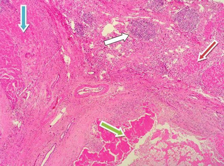 Modrá šipka nádorový uzel (trabekulární HCC); červená šipka nenádorové cirhotické uzly; bílá šipka – portální pole s hustou zánětlivou celulizací (HCV!!!!); zelená šipka nekrotický nádor v důsledku TACE. (HE – zvětšení 10x; V. Gabriš) Fig. 2. Blue arrow- tumor tissue (trabecular HCC); Red arrow – non-tumorous cirrhotic tissue; White arrow – portal fields with significant inflammatory cellulization (HCV!!!!); Green arrow – necrotic tumor due to TACE. (HE staining – enlargment 10x; V. Gabriš)