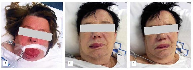 Angioedema in patient 1 necessitating urgent orotracheal intubation (A). Development bradykinin-induced angioedema in patient 2 (B) and its resolution after C1-esterase inhibitor administration (C).