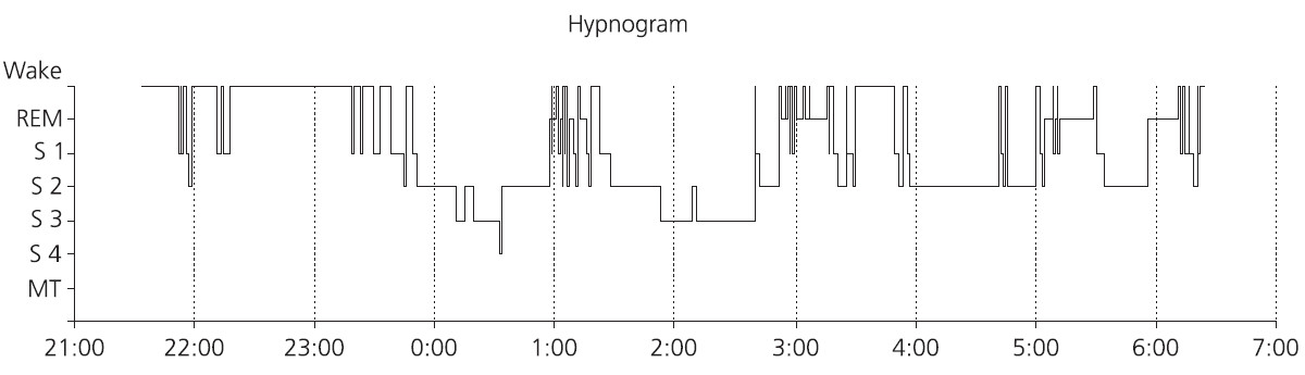 Hypnogram nemocného s obstrukční spánkovou apnoí, která se vyskytuje u tohoto nemocného více v REM spánku. Patrný velký podíl bdělosti během spánku, dlouhá latence kontinuálního hlubokého NREM spánku a velká fragmentace REM spánku. Podíl trvání REM spánku je zkrácen na 12 %. Hluboký NREM spánek tvoří jen 13 % celkové doby spánku. Cyklické uspořádání spánku je však zachováno.