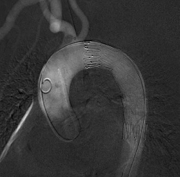 Digitální subtrakční arteriografie- finální uložení endograftu Fig. 2: Digital subtraction angiography – the final endograft position