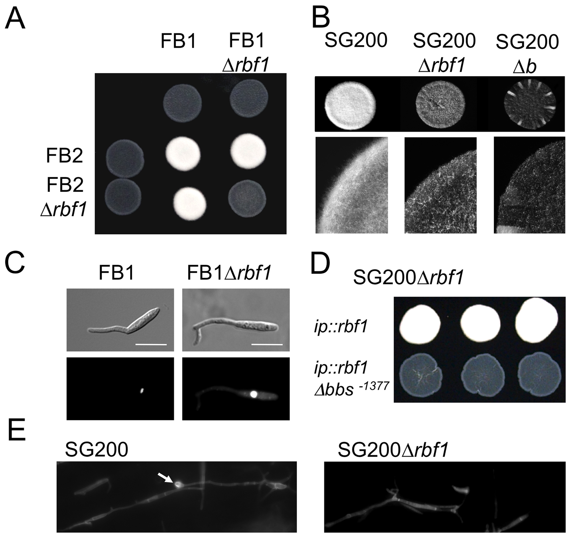 Rbf1 is required for <i>b</i>-dependent filament formation.