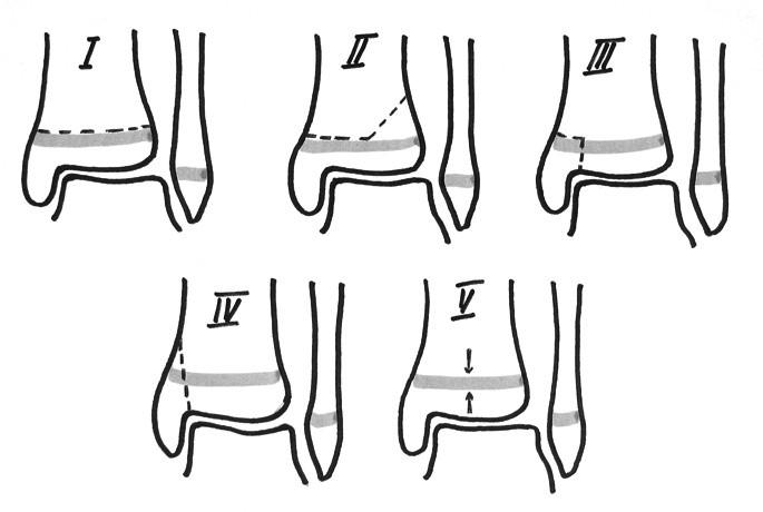 Salterova a Harrisova klasifikace fyzárních poranění (1963)