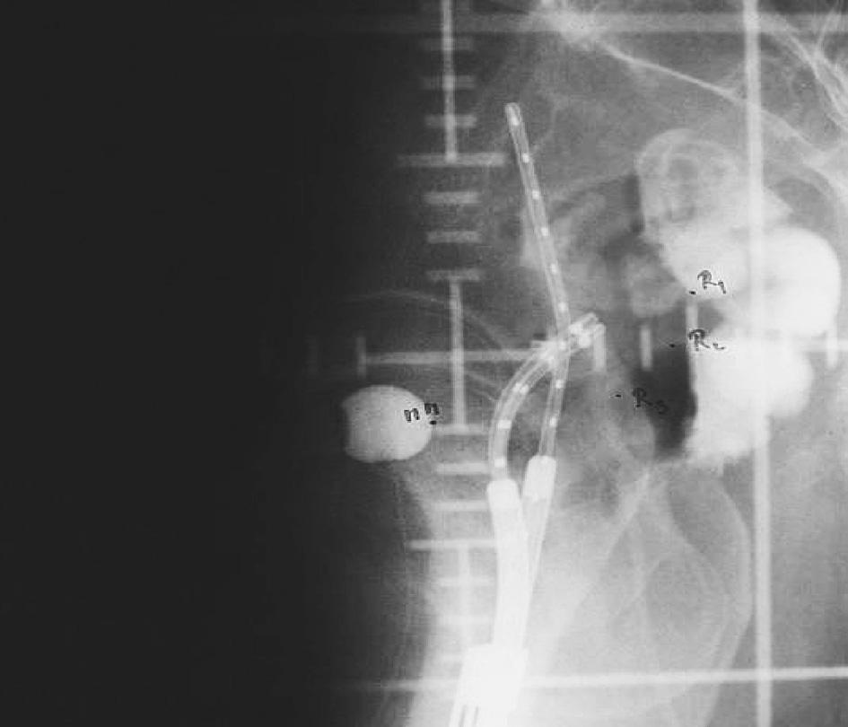 Uterovaginální aplikátor s referenčními body pro rizikové orgány na bočním RTG snímku při konvenčním plánování brachyterapie