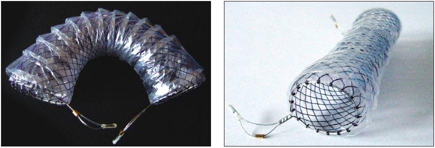 a 4. Flexella – Různé typy expandibilních metalických stentů ELLA Fig. 3 and 4. Flexella – various types of ELLA expandable metallic stents