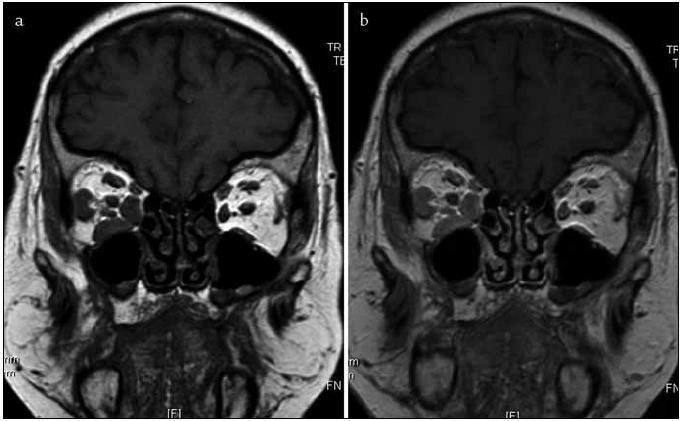 Obr. 8 (a,b). MR zobrazení T1 SE koronární sekvence: Pravostranně je v nativním zobrazení (a) sledovatelný stranově asymetrický obraz přímých očních svalů (vnitřního, dolního a zevního) se známkami postkontrastního sycení (b) při jejich infiltraci. Vyšetření dále ukázalo prosáknutí tkáně okolního tuku a slzné žlázy – na daných obrázcích nezachyceno.