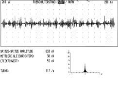 Turns/amplitude analysis u myoklonické formy cervikální dystonie v pokročilé fázi onemocnění (pravostranná torticollis, záznam z m. sternocleidomastoideus vlevo, participujícího svalu, počet turns/sekunda 117).