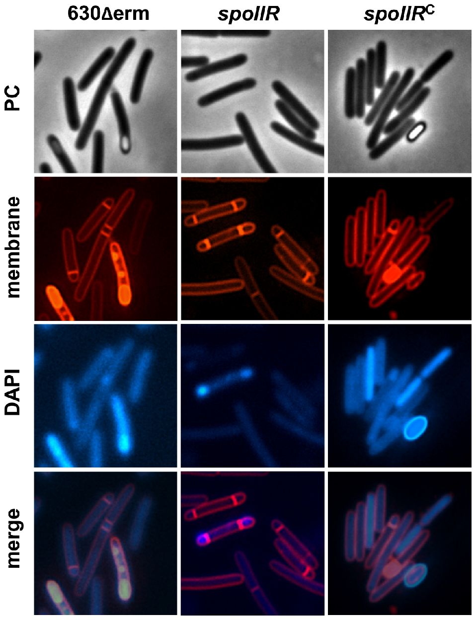 Morphological characterization of a <i>spoIIR</i> mutant.