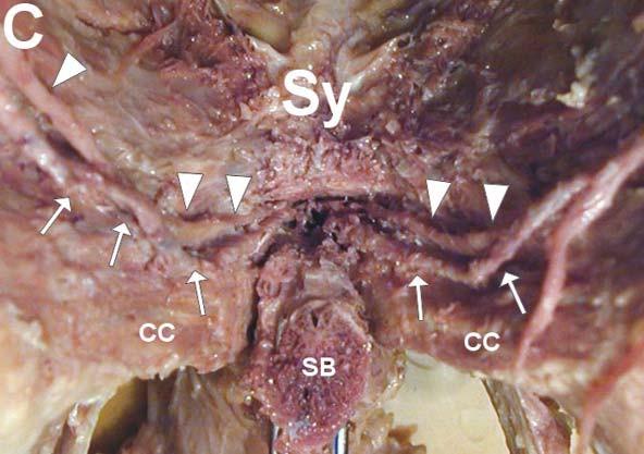 Nervus dorsalis penis (►) a arteria dorsalis penis (→) při pohledu zdola. CC - crus corporis cavernosi, SB - corpus spongiosum, Sy - symfýza.